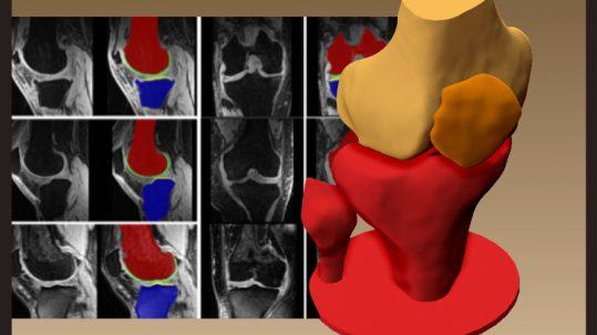 corso diagnostica immagini 3d fisioterapia medicale
